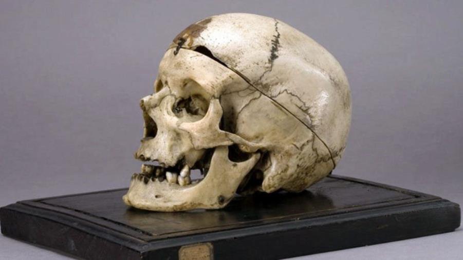 images Cranio del Museo Lombroso. La Cassazione definì giusto conoscerne le teorie